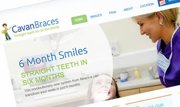 cavan braces - orthodontic services - Mci Design Cavan